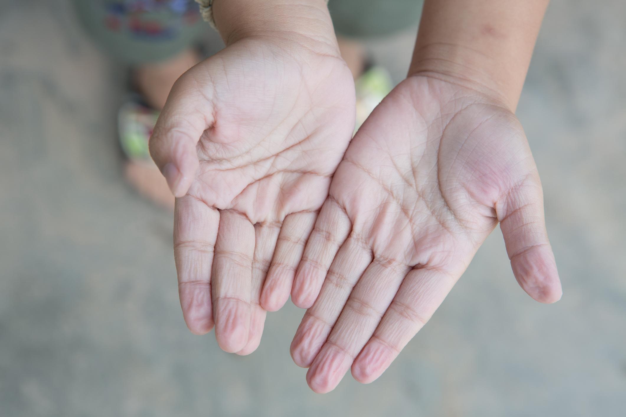 Mãos enrugadas